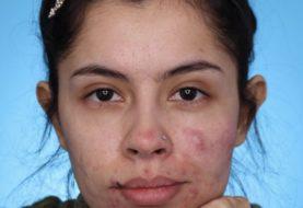 Diese Maskenbildnerin umarmte ihre Akne, indem sie sie zu wahren Sternbildern auf ihrem Gesicht machte
