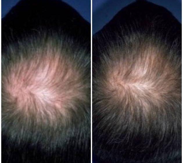 Ausdünnen der Haare: Wie man mit männlichen Kunden das Thema angeht