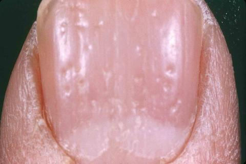 Bilder-Psoriasis-Arthritis-2
