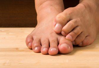 Wie Sie Fußnagelpilz behandeln sollten, so ein Fußarzt