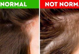 8 Dinge, die dein Haar über deine Gesundheit erzählen kann