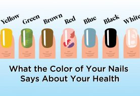 Was die Farbe Ihrer Nägel über Ihre Gesundheit aussagt