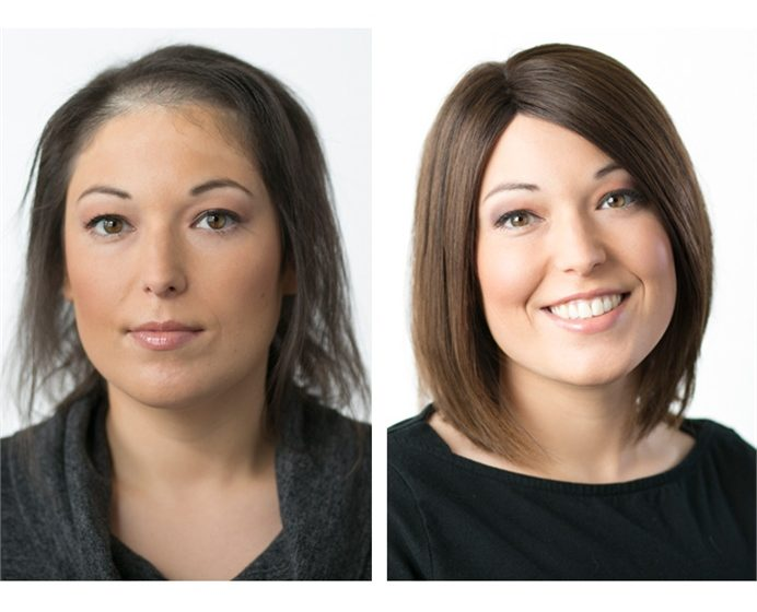 Business Builders: How to Find a Niche with Hair-Loss Clients
