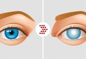 10 Gründe für den Verlust der Sehkraft Es ist besser, wenn Sie jung sind