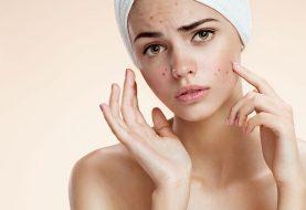 Vitamin A für Akne: Ist es eine wirksame Behandlung?