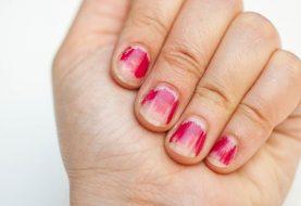 7 Alltägliche Gewohnheiten, von denen Sie nicht wussten, dass sie Ihre Nägel ruinierten