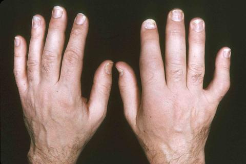 Bilder-Psoriasis-Arthritis-1