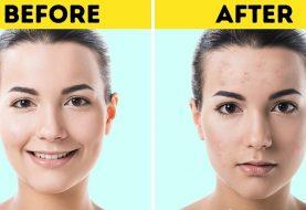 7 Beauty-Produkte, die Dermatologen zu ihrer schwarzen Liste hinzufügen