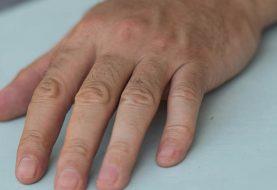 Wenn Sie eine bestimmte Markierung am Fingernagel haben, sollten Sie sofort auf Krebs untersucht werden