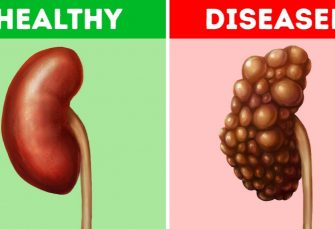 10Common Habits That Can Damage Your Kidneys