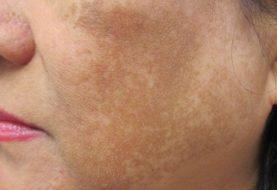 Behandlung von Akne bei dunkelhäutigen Menschen