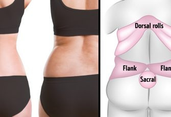 10Exercises toKill Back Fat Your Body Can't Wait toTry