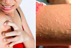 15 schädliche Dinge, die Sie möglicherweise auf Ihrer Haut tun könnten