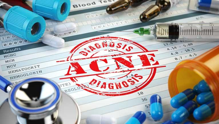 Prävention oder Behandlung von Akneausbrüchen